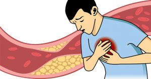 Colesterol VLDL