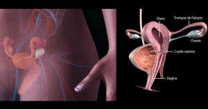Virus del Papiloma Humano en mujeres
